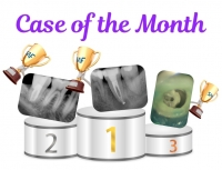 Case of The Month promotion