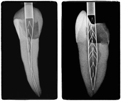 SAF tooth - picture by Dr. Roheet Khatavkar